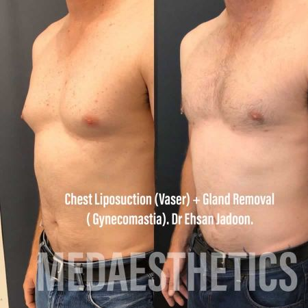 Medaesthetics - Male Breast (Gynecomastia) Surgery - Before and After Picture 20200601190941 - Treatment performed by Doctor Ehsan Jadoon