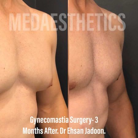 Medaesthetics - Male Breast (Gynecomastia) Surgery - Before and After Picture 20200601190944 - Treatment performed by Doctor Ehsan Jadoon