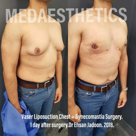 Medaesthetics - Male Breast (Gynecomastia) Surgery - Before and After Picture 20200601190946 - Treatment performed by Doctor Ehsan Jadoon