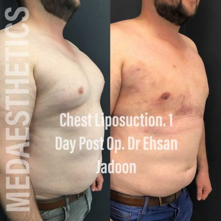 Medaesthetics - Male Breast (Gynecomastia) Surgery - Before and After Picture 20200601190948 - Treatment performed by Doctor Ehsan Jadoon