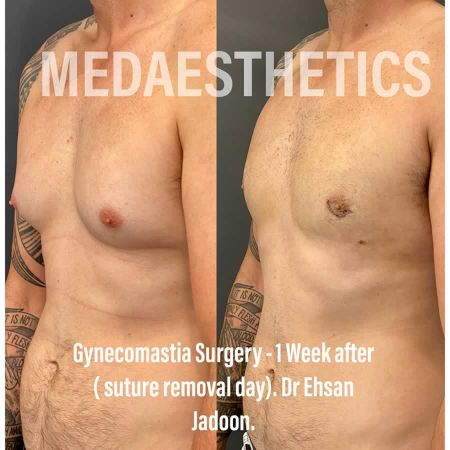 Medaesthetics - Male Breast (Gynecomastia) Surgery - Before and After Picture 20200601190950 - Treatment performed by Doctor Ehsan Jadoon