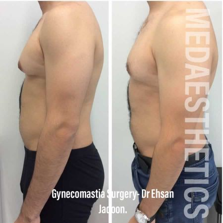Medaesthetics - Male Breast (Gynecomastia) Surgery - Before and After Picture 20200601190953 - Treatment performed by Doctor Ehsan Jadoon