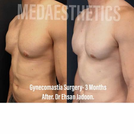Medaesthetics - Male Breast (Gynecomastia) Surgery - Before and After Picture 20200601191013 - Treatment performed by Doctor Ehsan Jadoon