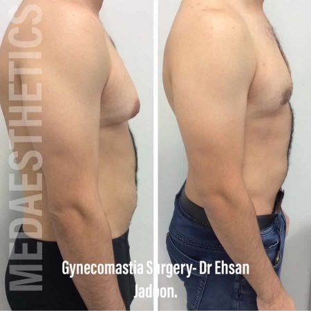 Medaesthetics - Male Breast (Gynecomastia) Surgery - Before and After Picture 20200601191015 - Treatment performed by Doctor Ehsan Jadoon