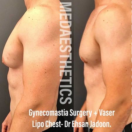 Medaesthetics - Male Breast (Gynecomastia) Surgery - Before and After Picture 20200601191018 - Treatment performed by Doctor Ehsan Jadoon