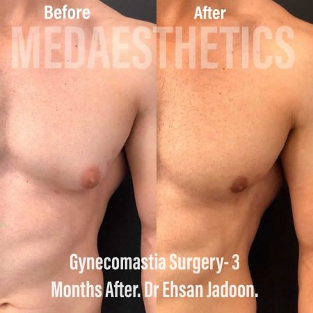 Medaesthetics - Male Breast (Gynecomastia) Surgery - Before and After Picture 20200601191022 - Treatment performed by Doctor Ehsan Jadoon
