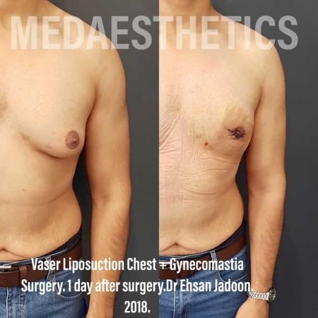 Medaesthetics - Male Breast (Gynecomastia) Surgery - Before and After Picture 20200601191024 - Treatment performed by Doctor Ehsan Jadoon