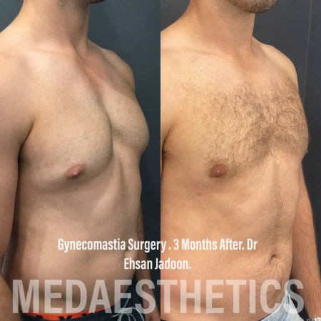 Medaesthetics - Male Breast (Gynecomastia) Surgery - Before and After Picture 20200611101120 - Treatment performed by Doctor Ehsan Jadoon