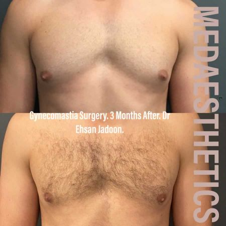 Medaesthetics - Male Breast (Gynecomastia) Surgery - Before and After Picture 20200611101122 - Treatment performed by Doctor Ehsan Jadoon