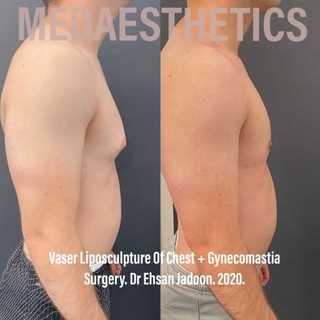 Medaesthetics - Male Breast (Gynecomastia) Surgery - Before and After Picture 20200624210219 - Treatment performed by Doctor Ehsan Jadoon