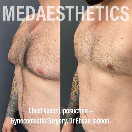 Medaesthetics - Male Breast (Gynecomastia) Surgery - Before and After Picture 20210209185350 - Treatment performed by Doctor Ehsan Jadoon