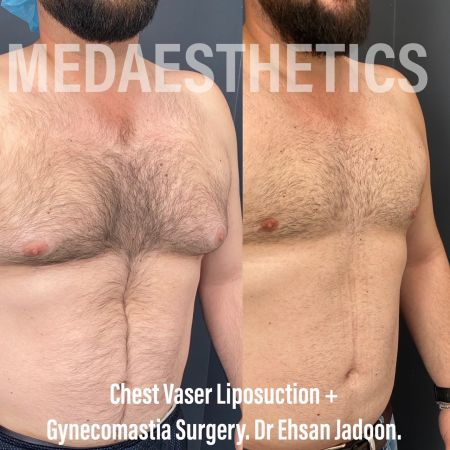 Medaesthetics - Male Breast (Gynecomastia) Surgery - Before and After Picture 20210209185353 - Treatment performed by Doctor Ehsan Jadoon