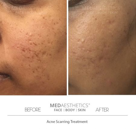 Scars / Stretch Marks Reduction - Perth - 20191130203821