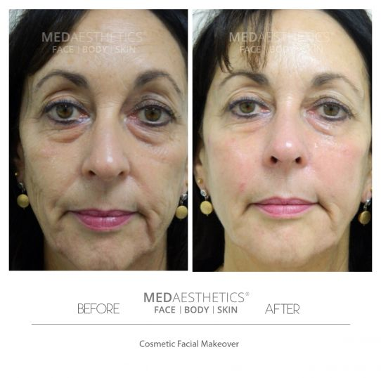 Injectable Moisturizers