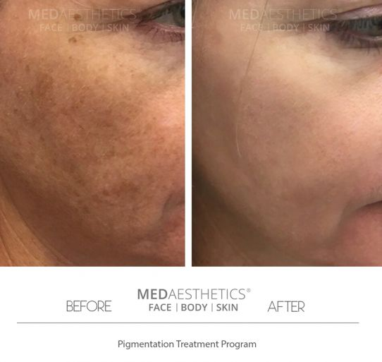 Laser Skin Rejuvenation