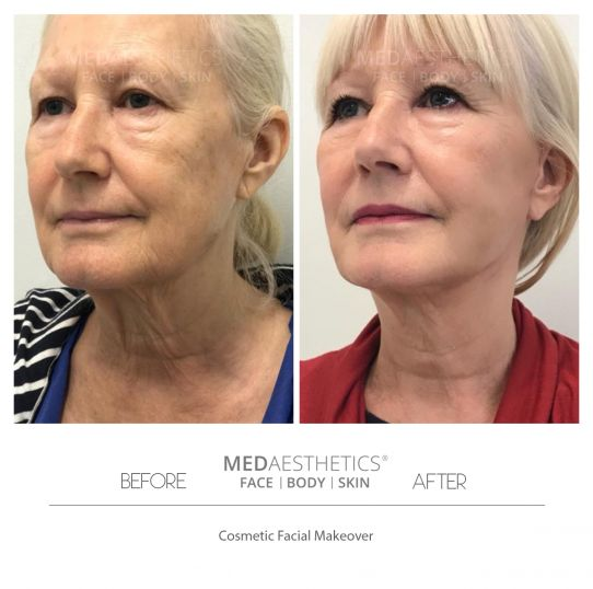 Cosmetic Facial Makeovers - Medaesthetics