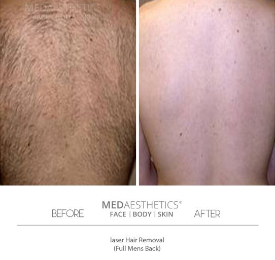 High Speed Laser Hair Removal