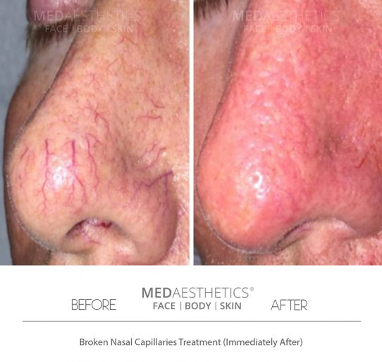 Capillaries, Redness, Rosacea - Medaesthetics