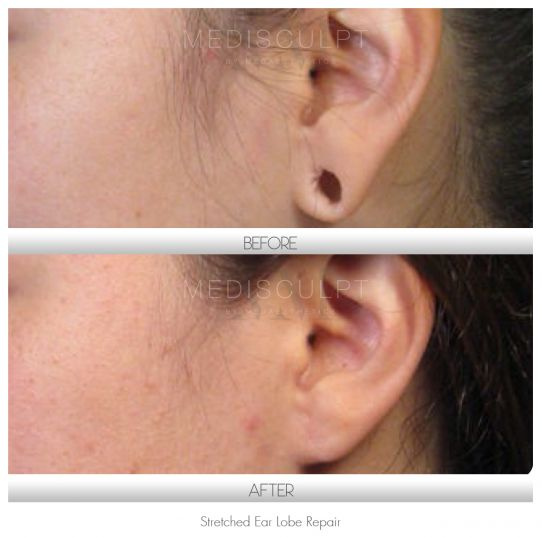 Stretched Earlobe Repair - Medaesthetics