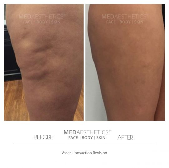 Revision Liposuction - Medaesthetics