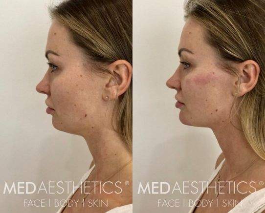 Cheek Fillers - Medaesthetics
