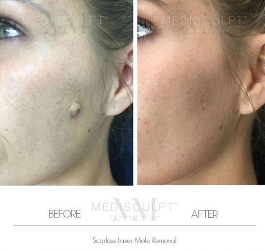 Scarless Mole Removal
