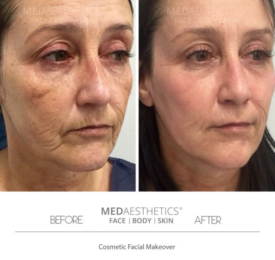 Thread Lift - Medaesthetics